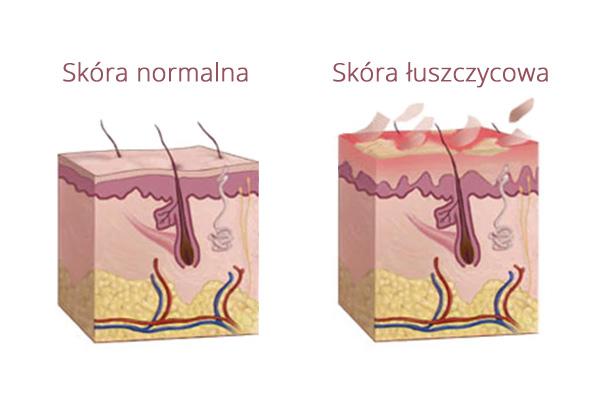 Łuszczyca infografika zdjęcia